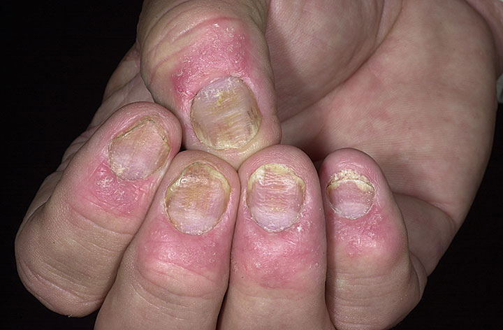 Подагра  причины симптомы диагностика и лечение
