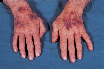 Кожни заболявания в старческа възраст