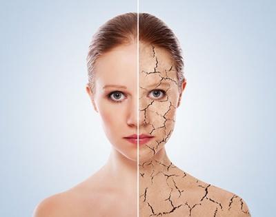 Проблемът суха кожа