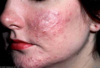 Розацея,свръхчувствителна и склонна към зачервяване кожа на лицето