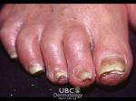 Болести на ноктите