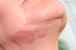 Гъбични инфекции на кожата,ноктите и косата